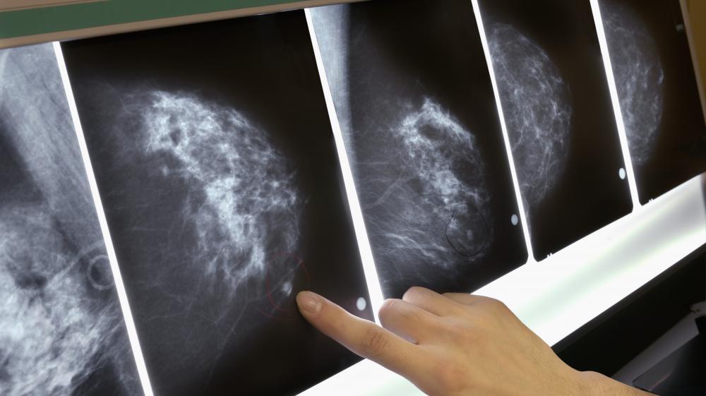Comment ont évolué les principaux cancers en trente ans ?