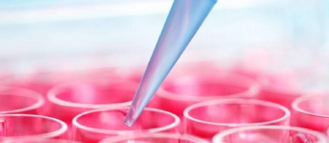 SCIENCES / Première implantation sur l'homme de cellules reprogrammées iPS